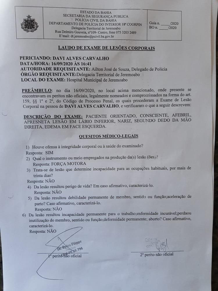 Caso Davi Alves: Violência contra profissionais da imprensa no interior da Bahia preocupa a ABI; com vídeo
